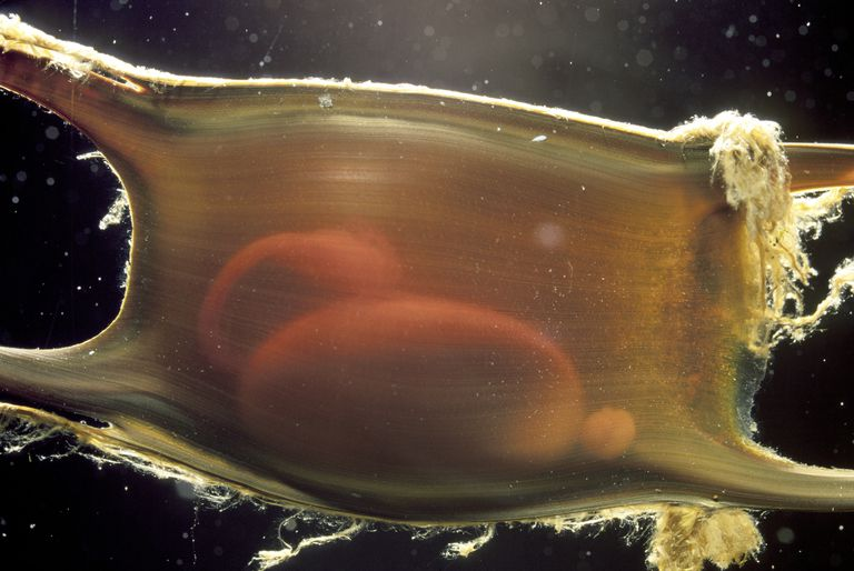 Developing embryo of Little Skate inside egg, Massachusetts, USA / Johnathan Bird / Photolibrary / Getty Images