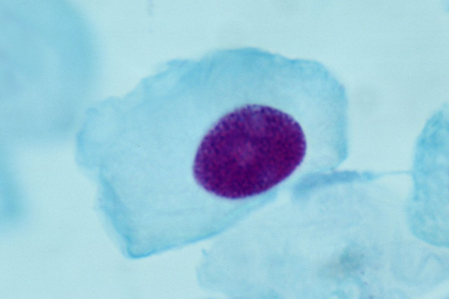 A plant cell in Interphase