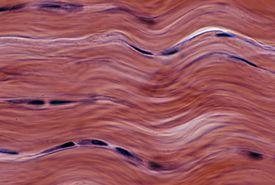 Microscopic image of dense fibrous connective tissue