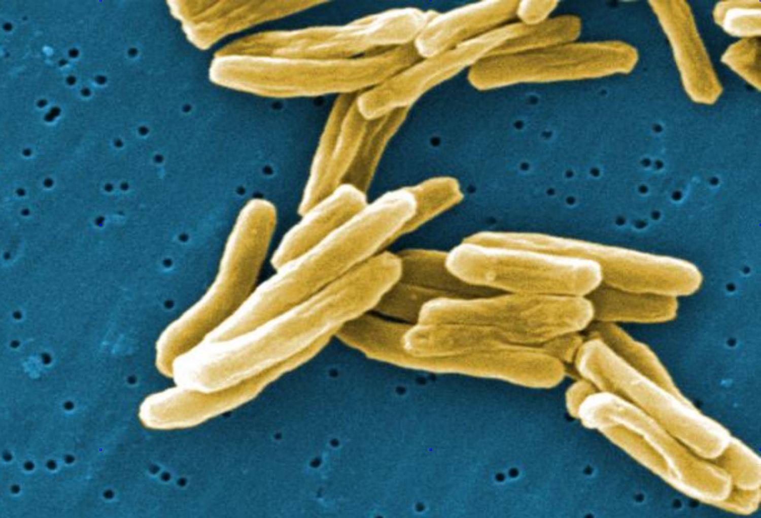 This scanning electron micrograph (SEM) depicts a number of Gram-positive Mycobacterium tuberculosis bacteria. TB bacteria become active, and begin to multiply, if the immune system can't stop them from growing. The bacteria attack the body and destroy tissue. If in the lungs, the bacteria can actually create a hole in the lung tissue.