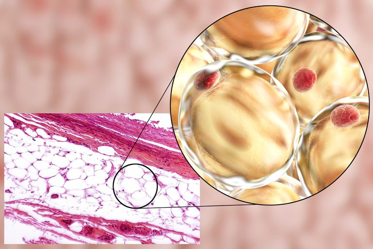 White adipose tissue composed of adipocytes (fat cells).