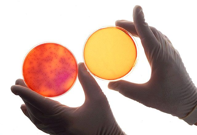 These petri dishes illustrate the sterilization effects of ionizing air on Salmonella growth.