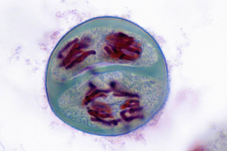 Meiosis Anaphase II