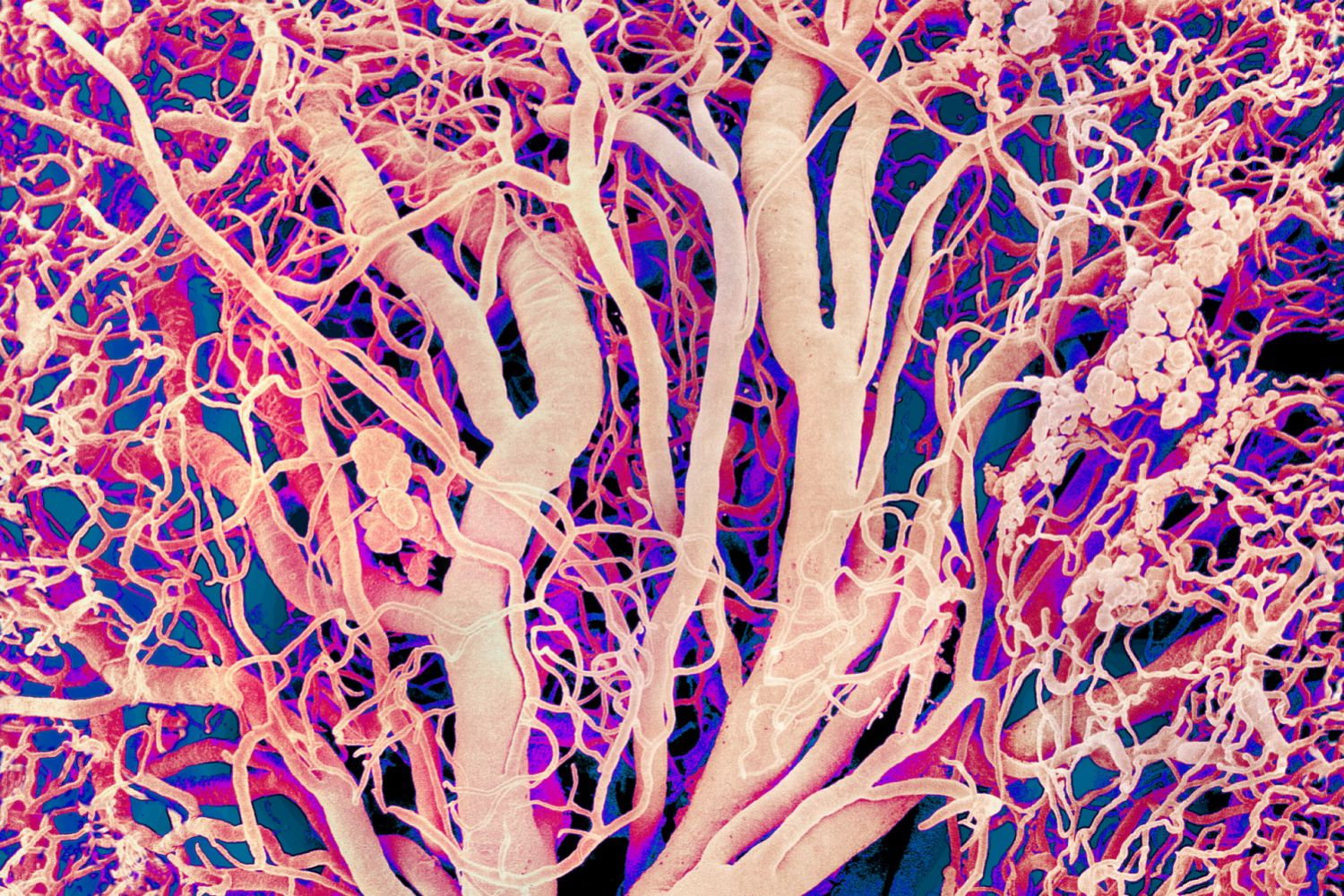 The Types Of Blood Vessels In Your Body