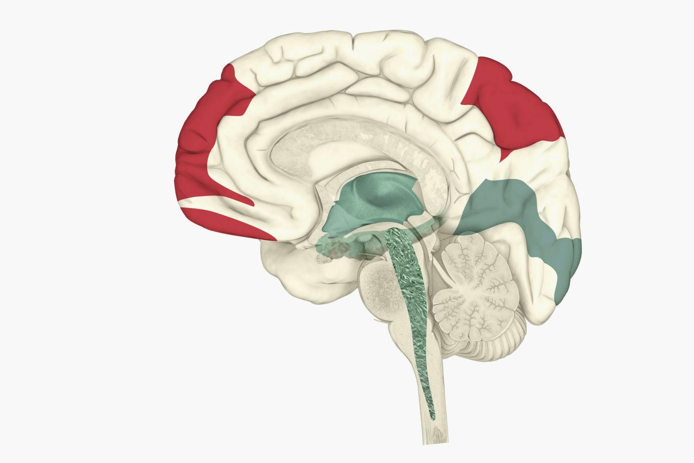 Gehirnaktivität während des REM-Schlafes
