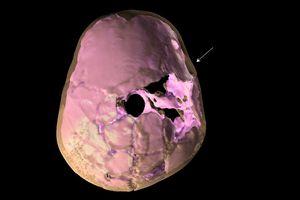 3D Reconstruction, Cranial Trauma of Qazfeh 11 Juvenile