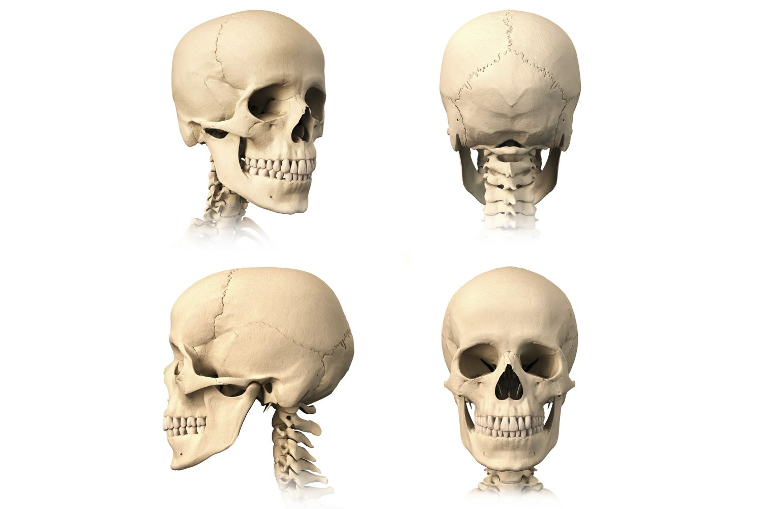 Diagram showing skull from multiple angles with bones visible on a white background.