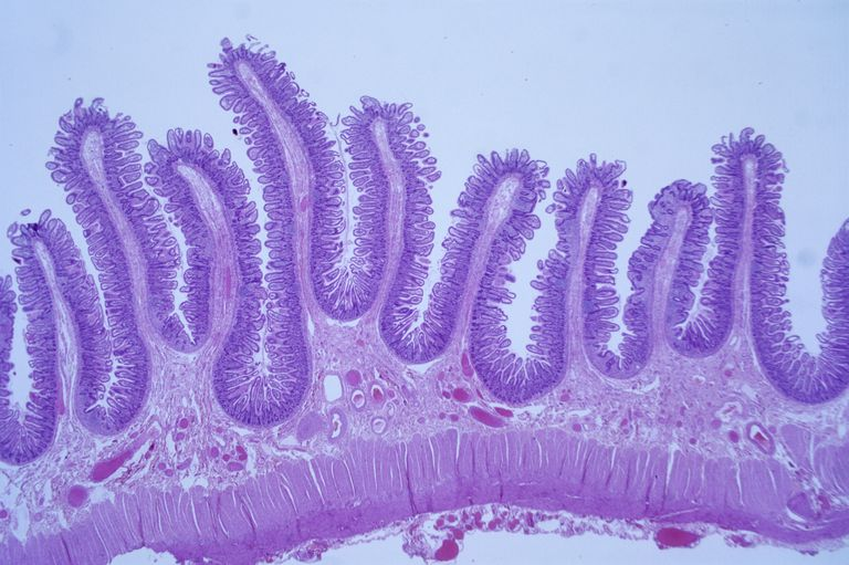 A light microscope showing a histological preparation of the intestinal lining