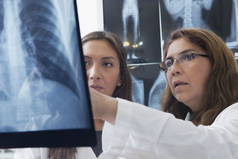 Doctors examining a chest x-ray.