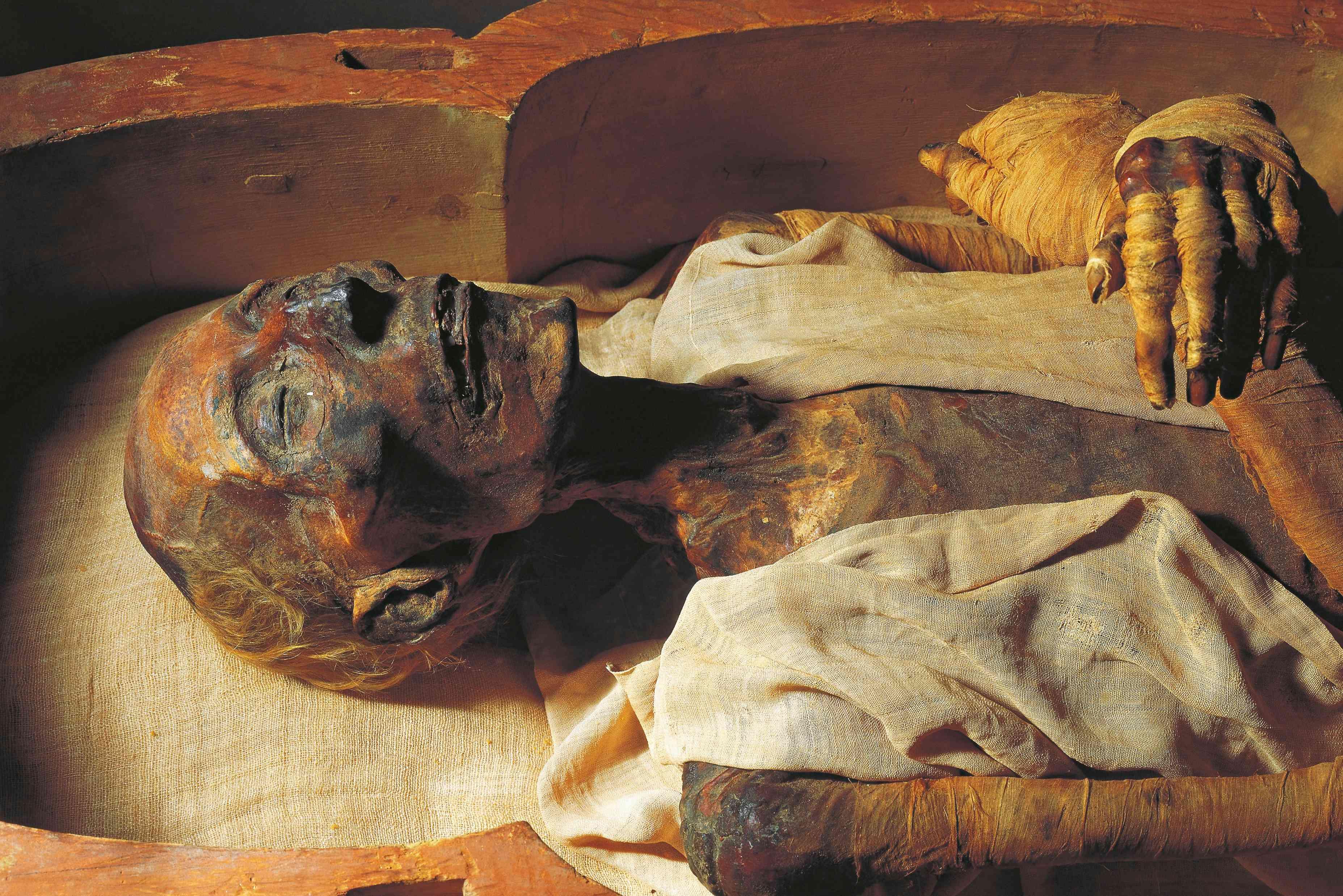 Mummy of Ramses II