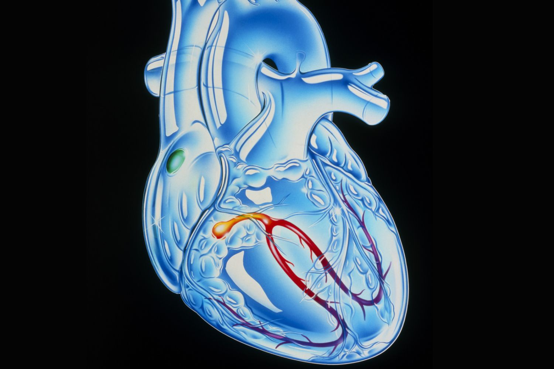 4 Steps of Cardiac Conduction