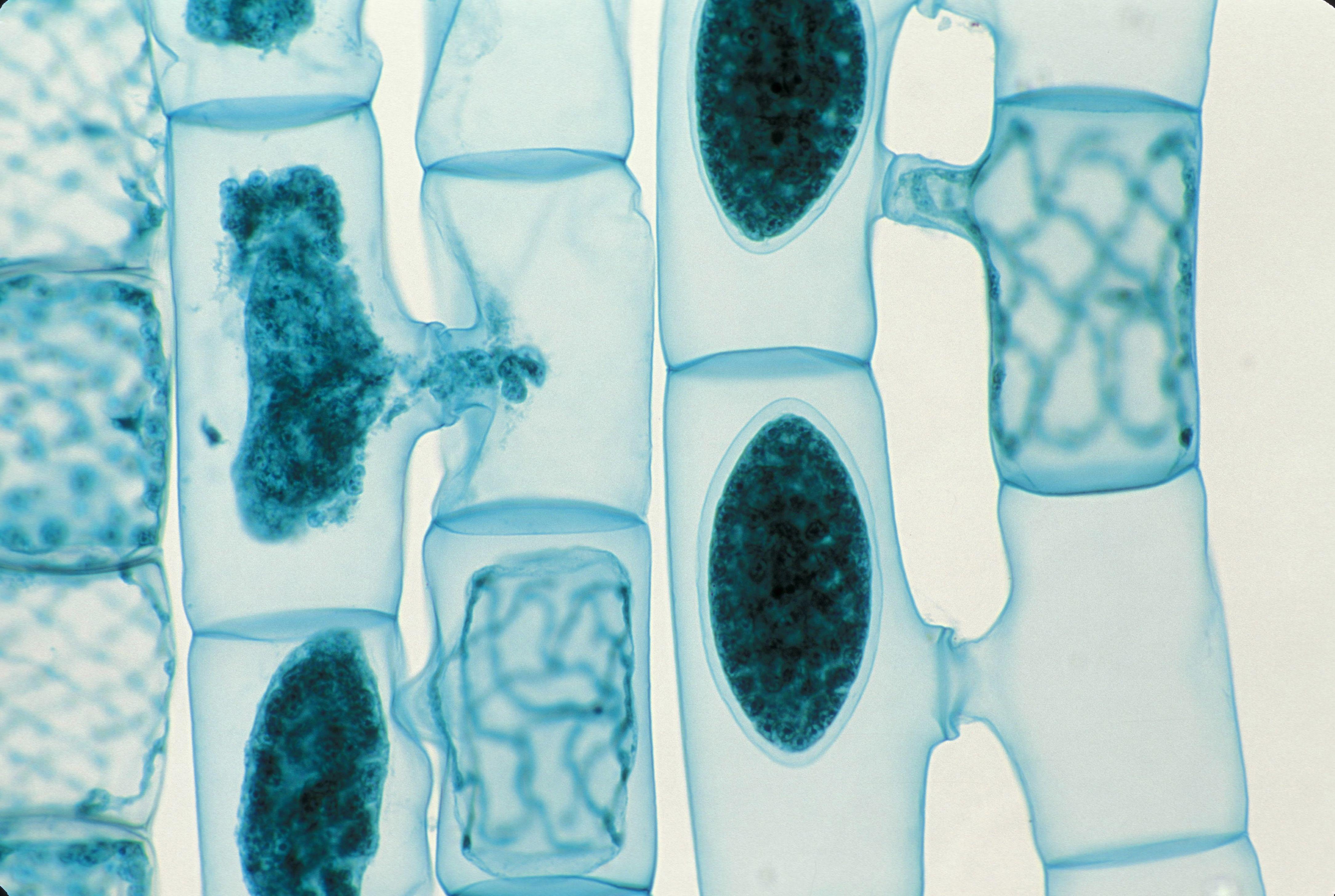 Spirogyra, Green algae. conjugation tubes, zigotes, Active Gametes