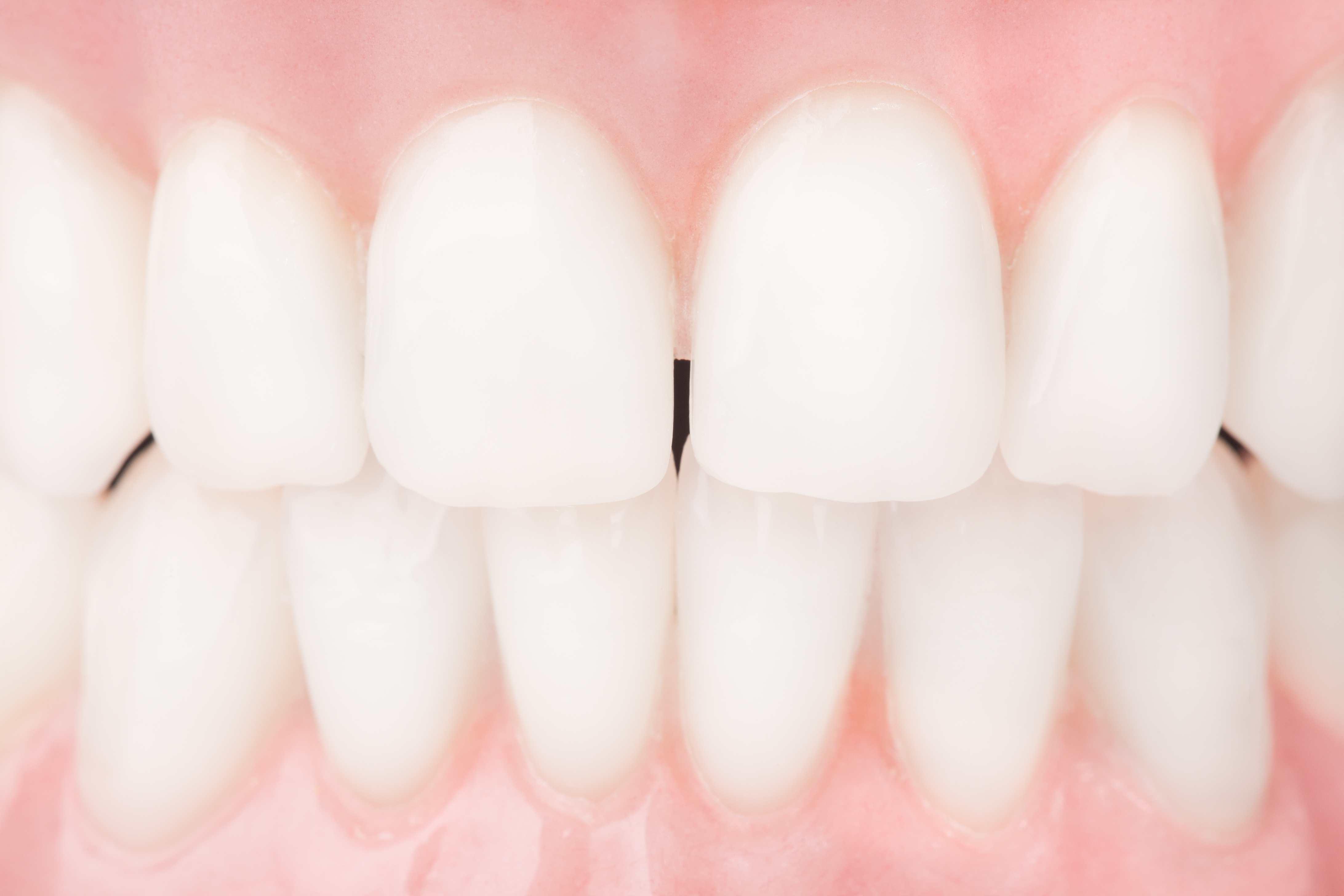 Whitened teeth after dental procedure