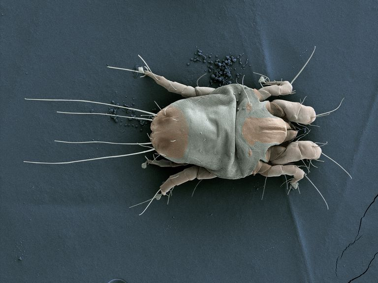 SEM image of a house dust mite.