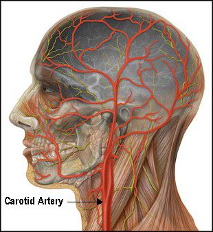 Internal and External Carotid Arteries