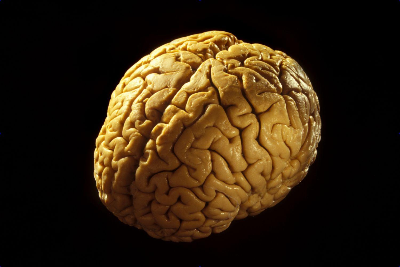 Anatomy Of The Brain Cerebrum