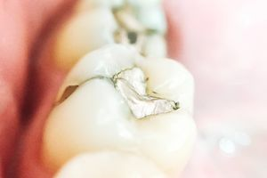 Most dental amalgam consists of a mixture of mercury and silver.