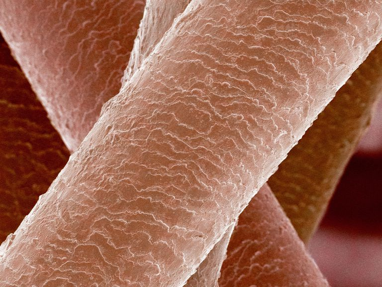This is a SEM micrograph of human hair, which is made of keratin. Skin, horn, and hooves are also made of the protein keratin.
