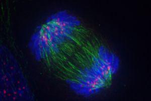 Anaphase - Mitosis