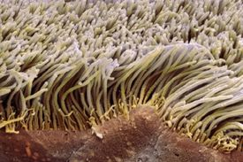 Ciliated Epithelial Cells