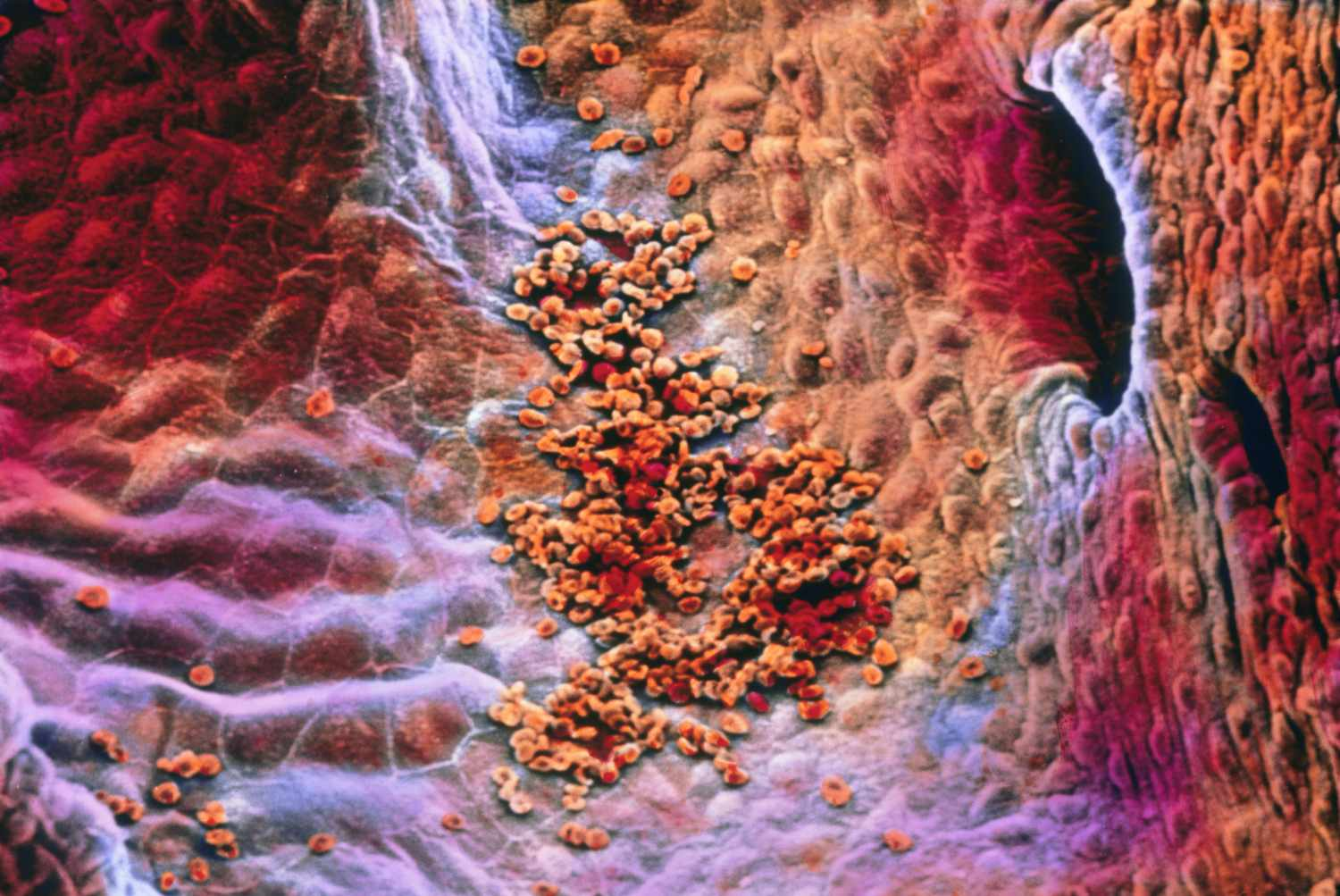 Image of the endocardium layer of the heart taken by a microscope.