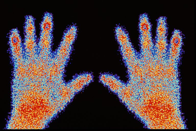shape of hands glowing with radioactive tracer