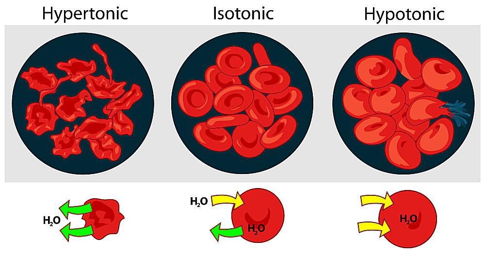 The effect of osmotic pressure on red blood cells in shown.