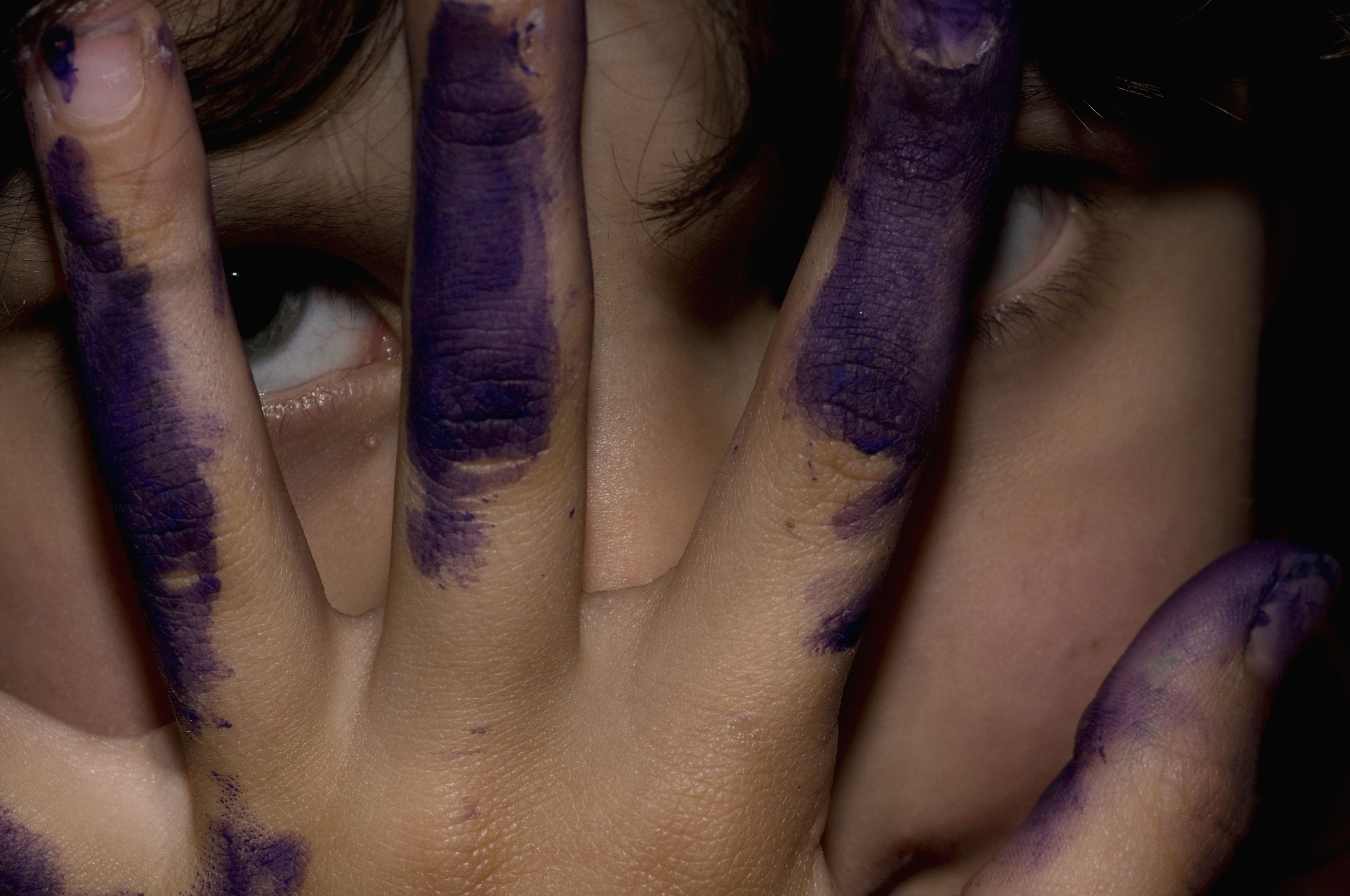 Close-up of girl (10-11) looking through fingers with ink stains