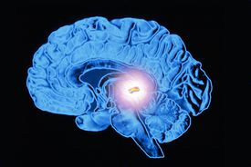 The pineal gland is a small gland situated deep within the brain, just below the back of the corpus callosum