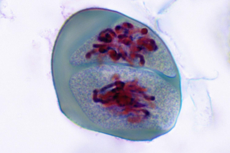 Meiosis Prophase II