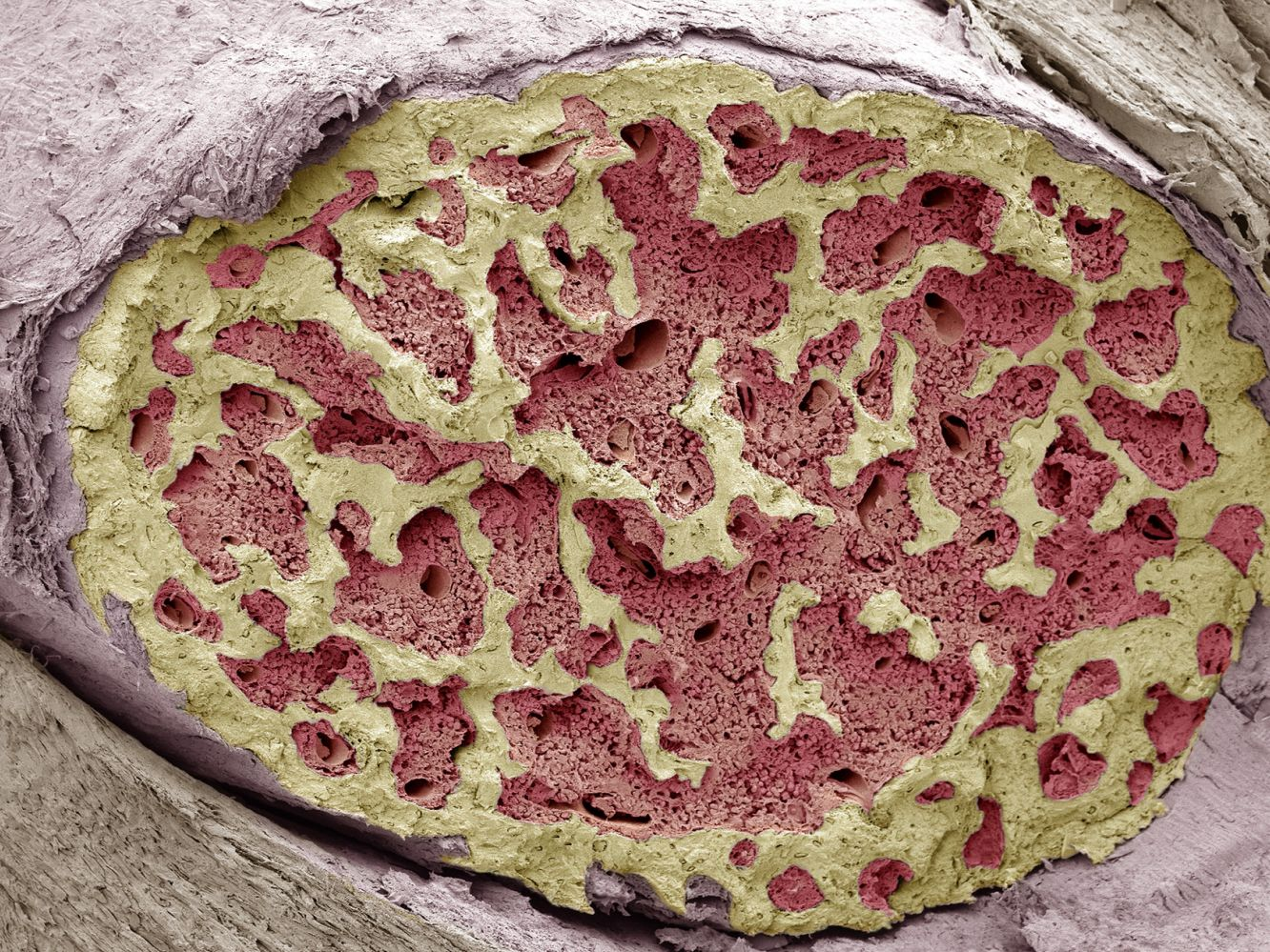Bone Marrow: Structure, Function, Diseases and More