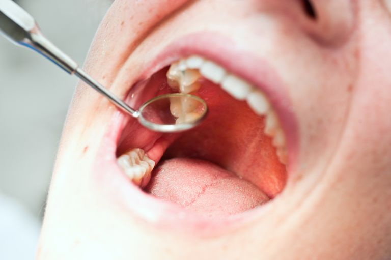 Patient at dentist with open mouth during treatment on teeth