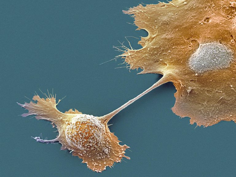 ancreatic cancer cells, SEM