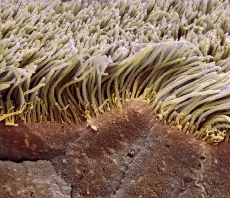Ciliated epithelial cells viewed through a colored scanning electron micrograph (SEM)