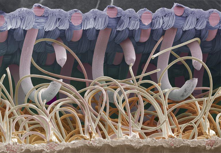 Electron micrograph of Velcro