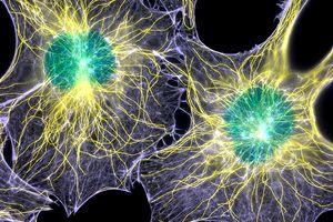 Fibroblast cells showing cytoskeleton.
