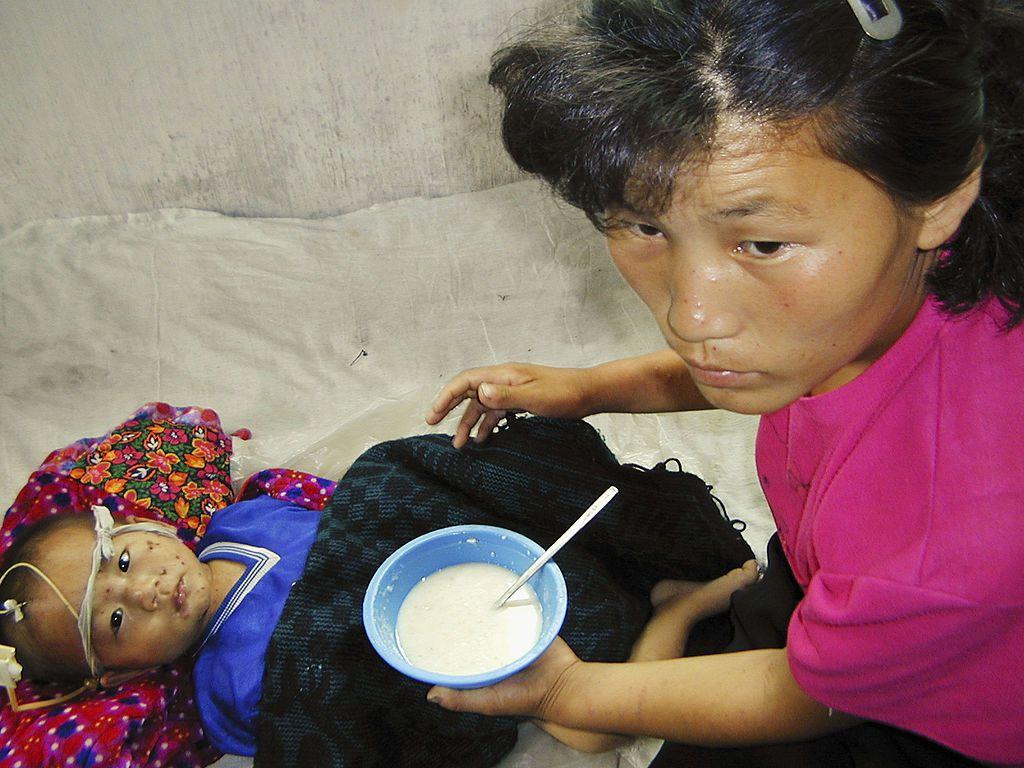 Millions suffer from malnourishment in North Korea.