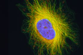 This fibroblast cell has been stained to reveal its structures: nucleus purple and cytoskeleton yellow.