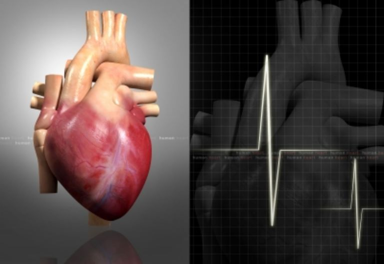 Cardiovascular system quiz test your knowledge human heart dream designsfreedigitalphotos ccuart Choice Image