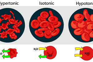 Here is how osmosis affects red blood cells in hypertonic, isotonic, and hypotonic solutions.