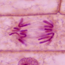 Plant Mitosis - Anaphase