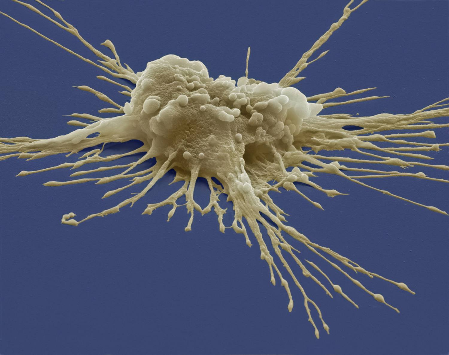 Pluripotent stem cell on a blue background.