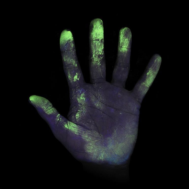 UV light reveals blaschko's lines on skin