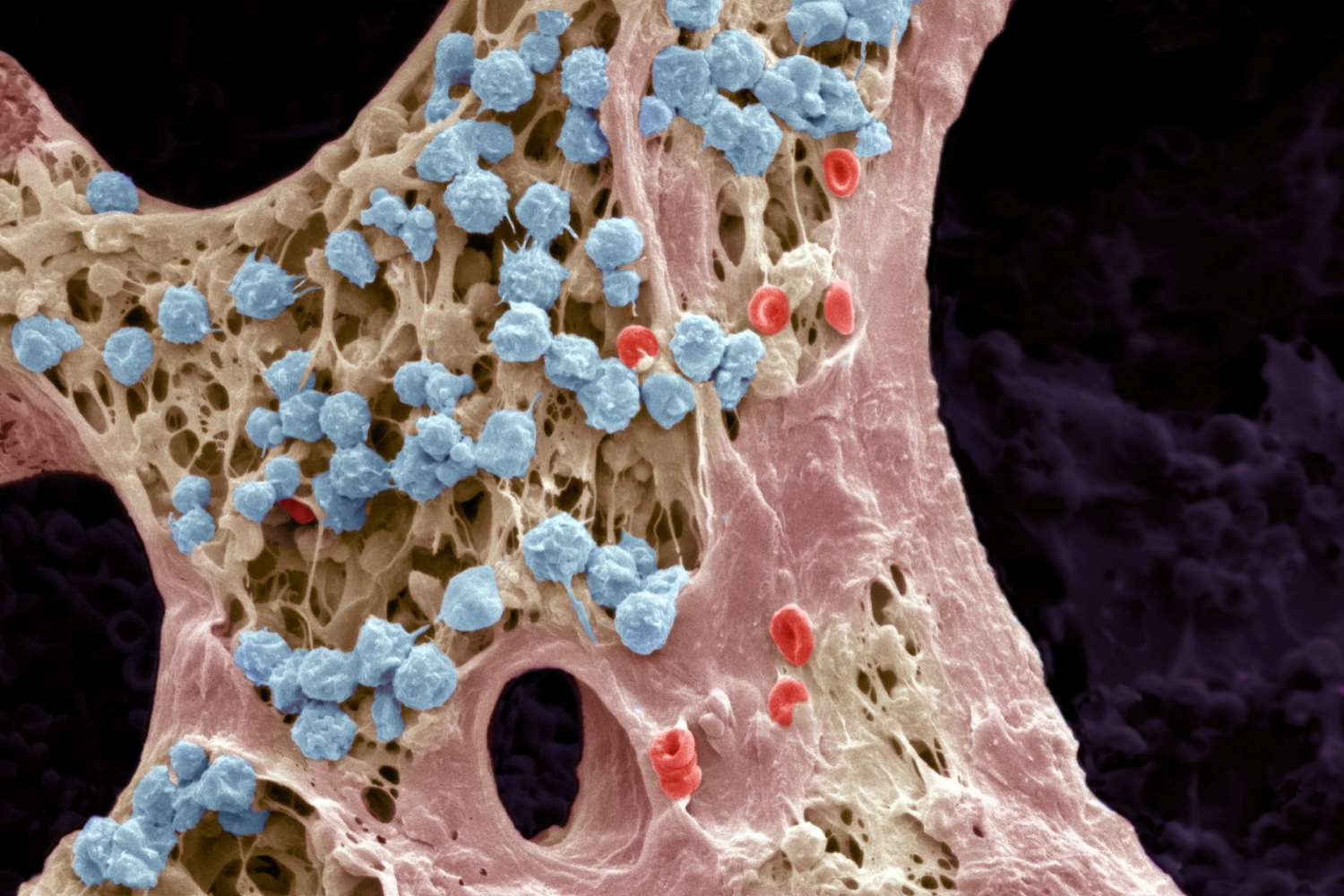 Red Blood Cells Function And Structure Human White Cell Diagram Overview Stock Bone Marrow Scanning Electron Micrograph Sem Is Where Production Takes Place Steve Gschmeissner Getty Images