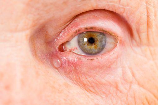 Elderly woman tear duct