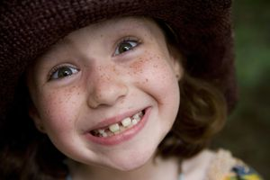 girl with crooked teeth