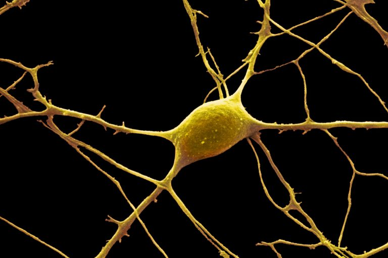 A neuron and dendrites