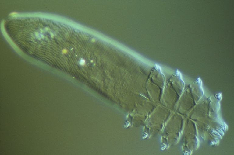 A magnified image of Demodex folliculorum