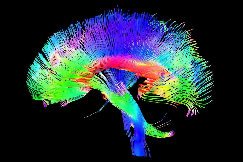 White Matter Nerve Pathways