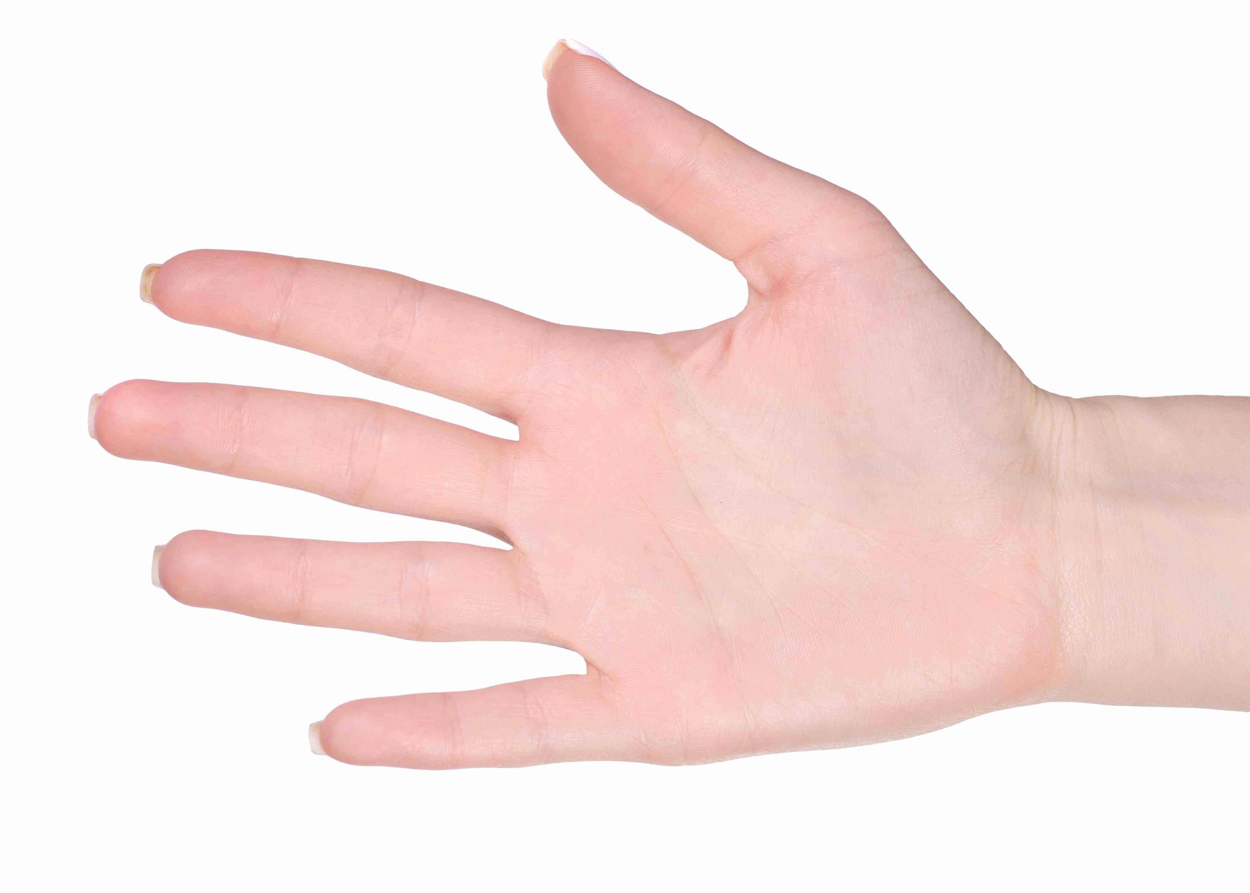 leziune la încheietura mâinii închise tratamentul bolii articulare toracice cervicale
